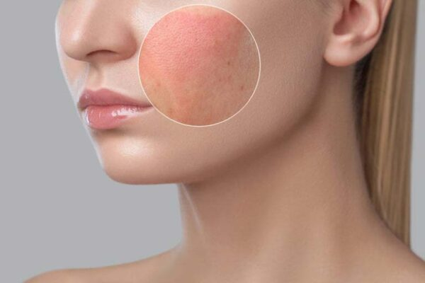 private label skin care Glycolic 5% Exfoliating Lotion